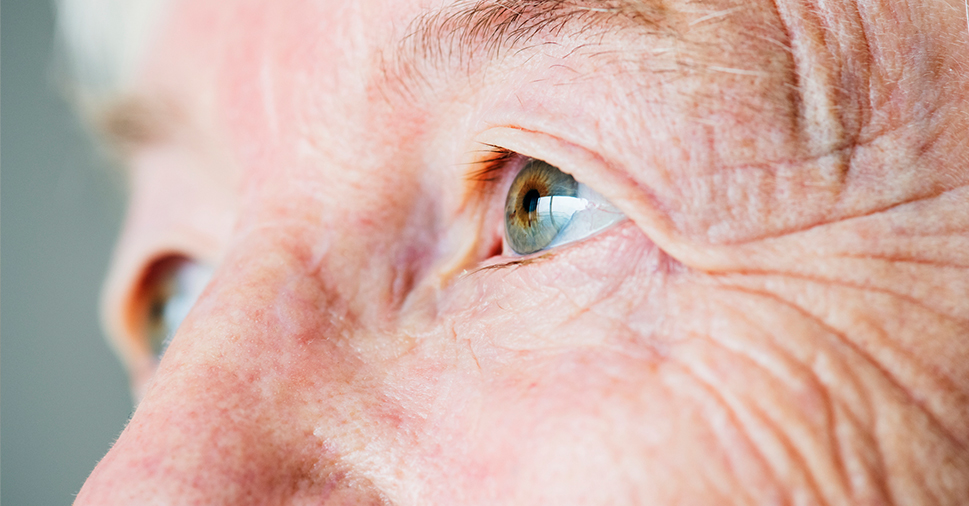 A closeup of a side profile of an elderly's person's hazel eyes.