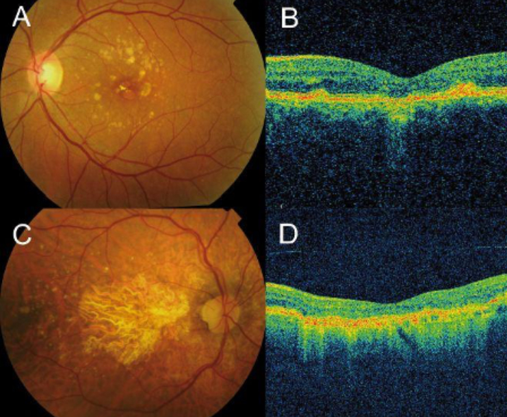 OCT of Atrophic Macular Degeneration