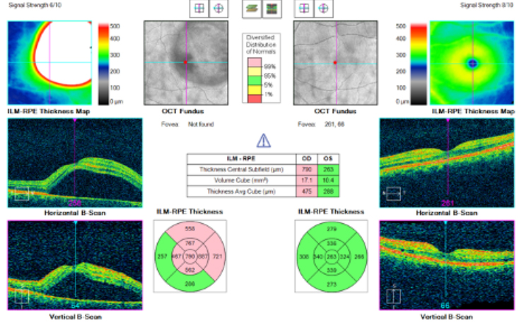 Central Serous Retinopathy OCT chart