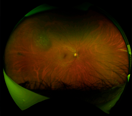 Congenital Hypertrophy of the Retinal Pigment Epithelium (CHRPE)