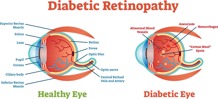 Diabetic Retinopathy graphic showing difference between an healthy eye and a diabetic eye.