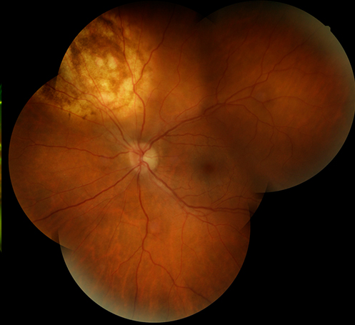 Tumor of the Eye - Melanoma