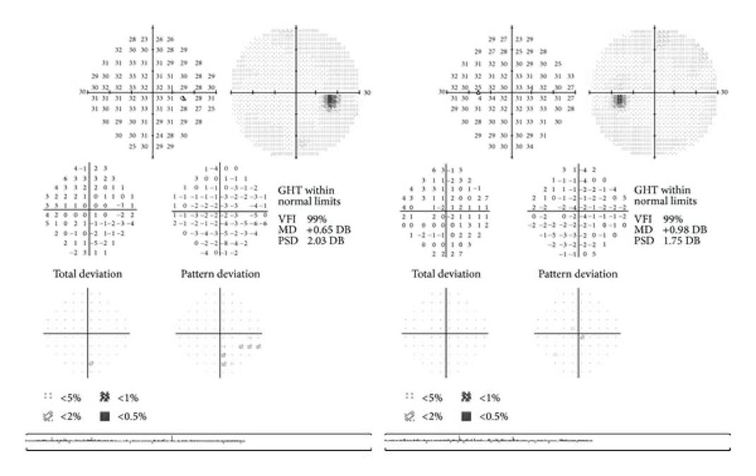 Full Visual Field chart