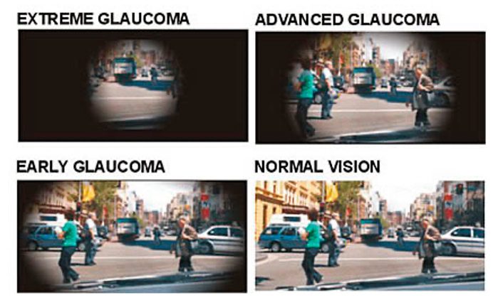 Stages of Glaucoma