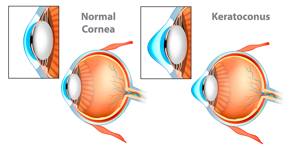 Illustration of normal cornea versus keratoconus.