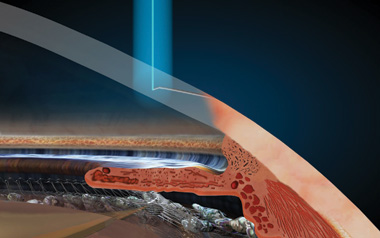 Laser incisions illustration