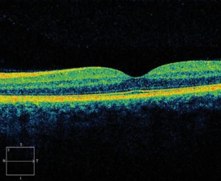 OCT - normal macula