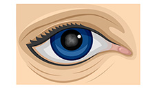 Illustration of three types of cataracts, such as cortical, nuclear and posterior capsular cataracts
