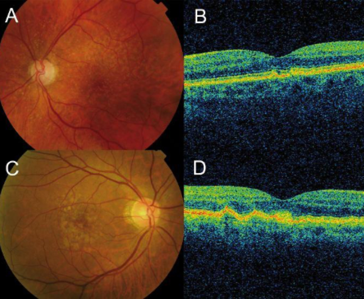 OCT of Age-Related Macular Degeneration (AMD) Dry