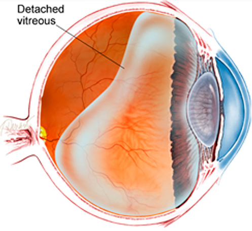 Posterior Vitreous Detachment