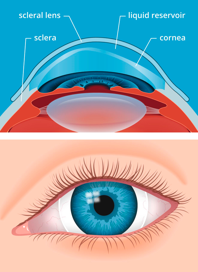 Scleral lens illustration of the eye