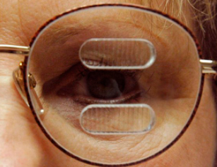 Close up of a man's eye with glasses on and a type of visual field expanders on the glasses